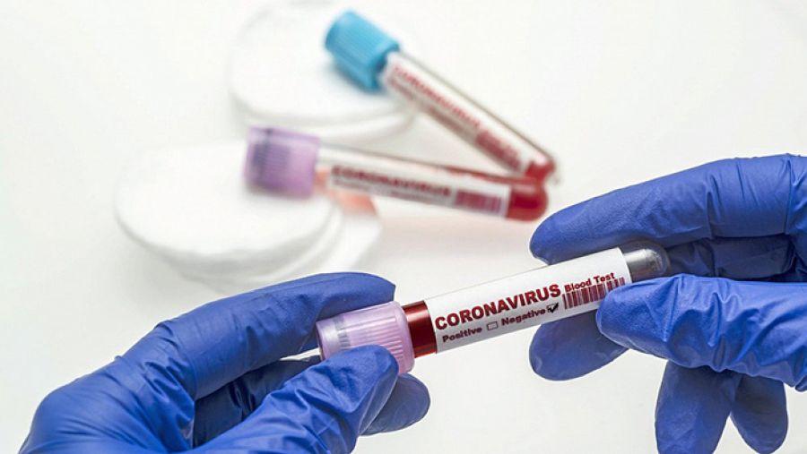 В Челябинской области прирост больных коронавирусом за сутки составил 270 человек